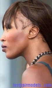 edged hairline2