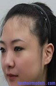 shape hairline2