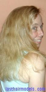 burnt hair5