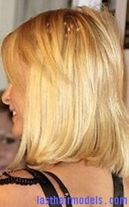 thinning hair2