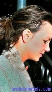 hairline7