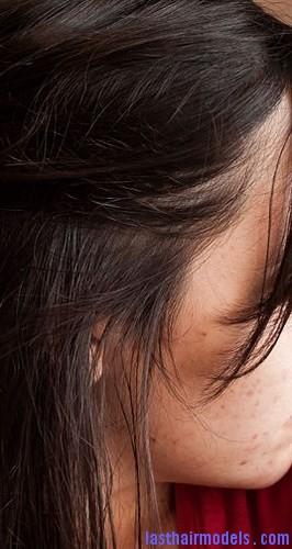 burnt hair moisturize5
