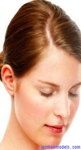 dry scalp3