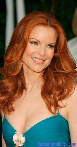 Marcia Cross at the Screen Actors Guild awards in January.