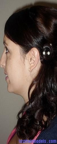 hair cuticle8