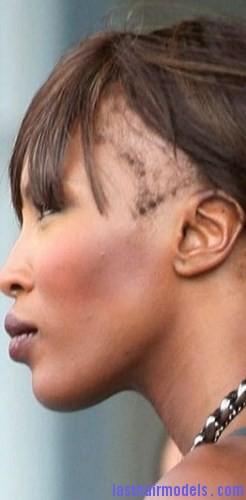 hair loss2