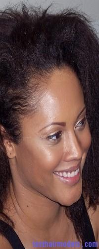 overprocessed hair3