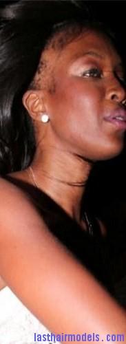 receding hairline3