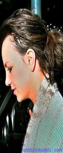 receding hairline4