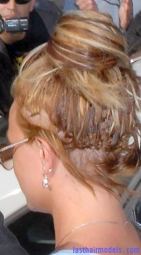 hair sores2